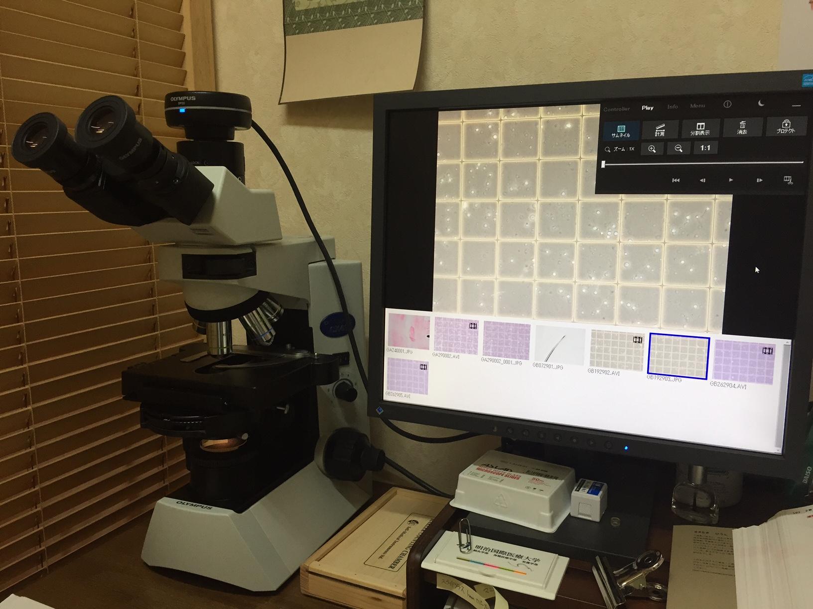 位相差顕微鏡とマクラーカウンティングチェンバーによる精子観察