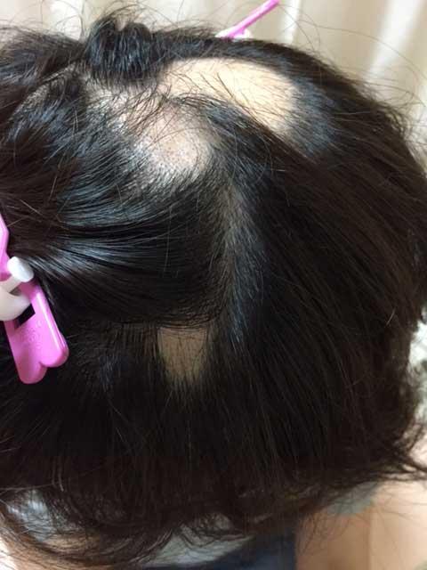 summary_alopecia-03-1