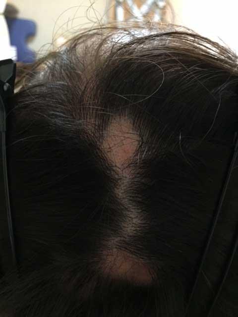 summary_alopecia-03-2