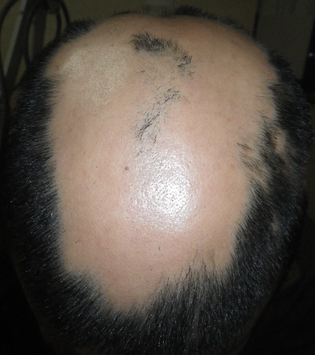 summary_alopecia-06-1