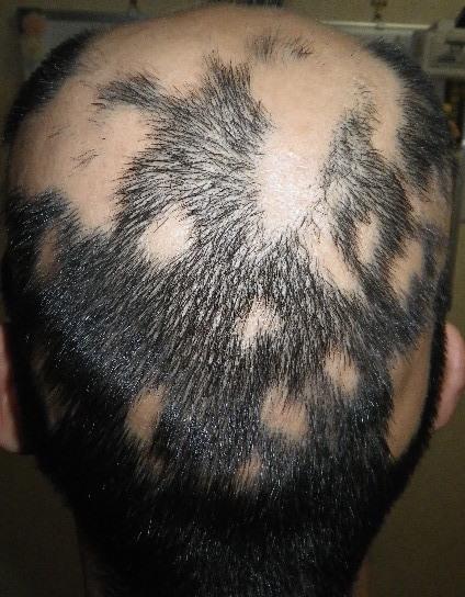 summary_alopecia-06-2