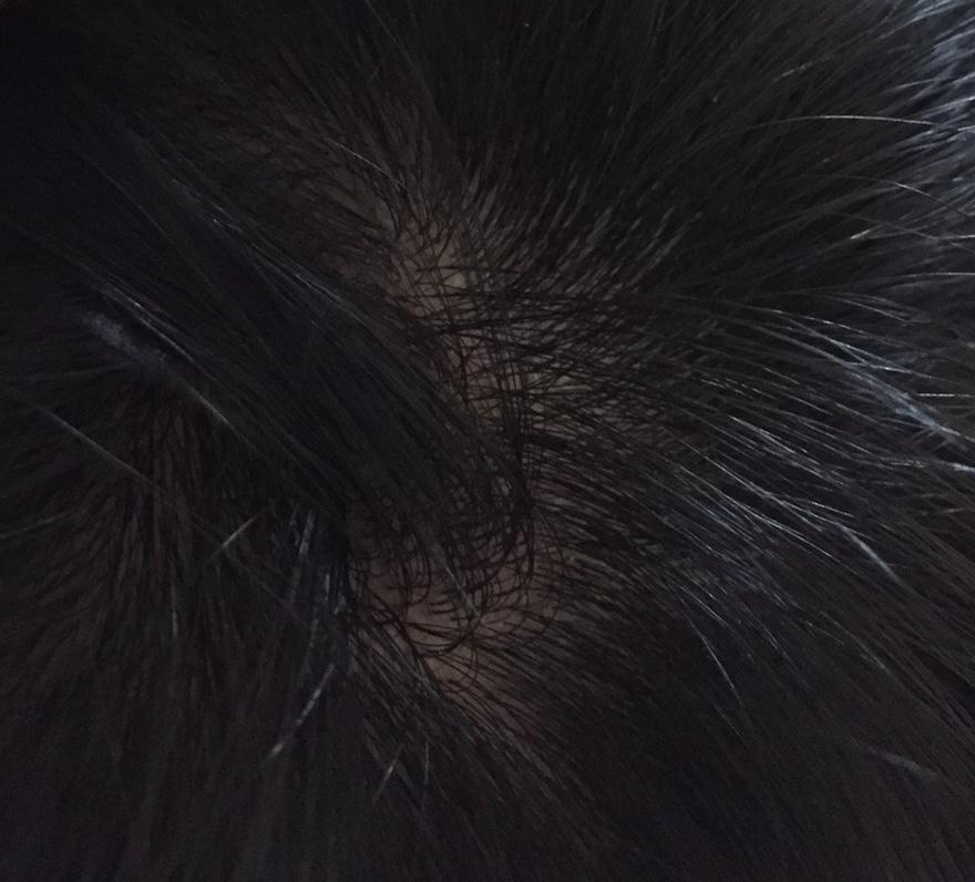 summary_alopecia-07-2