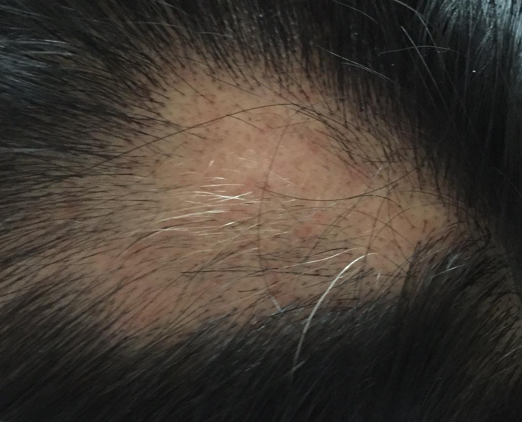 summary_alopecia-08-1