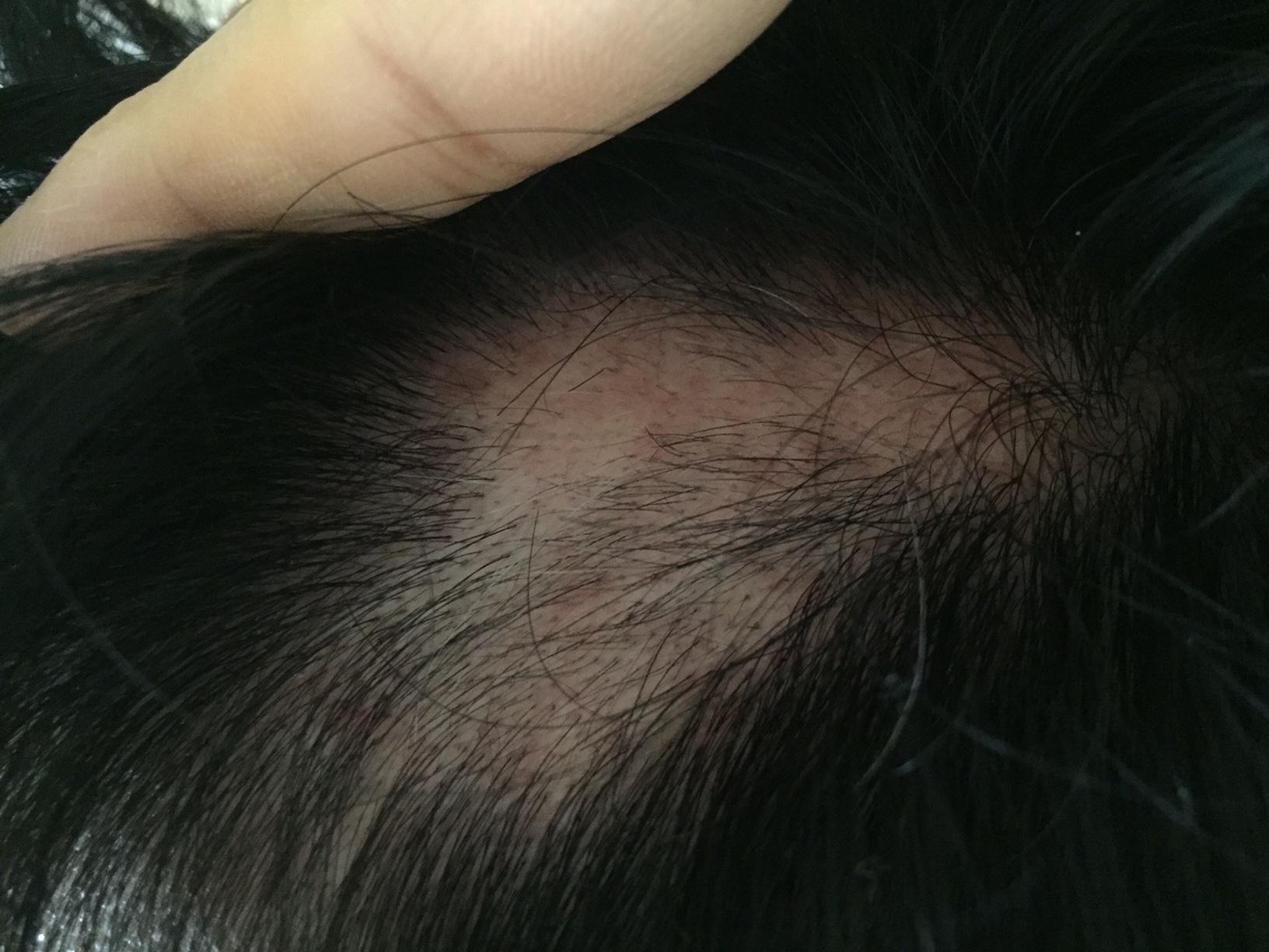 summary_alopecia-08-2