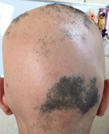 summary_alopecia-09-1