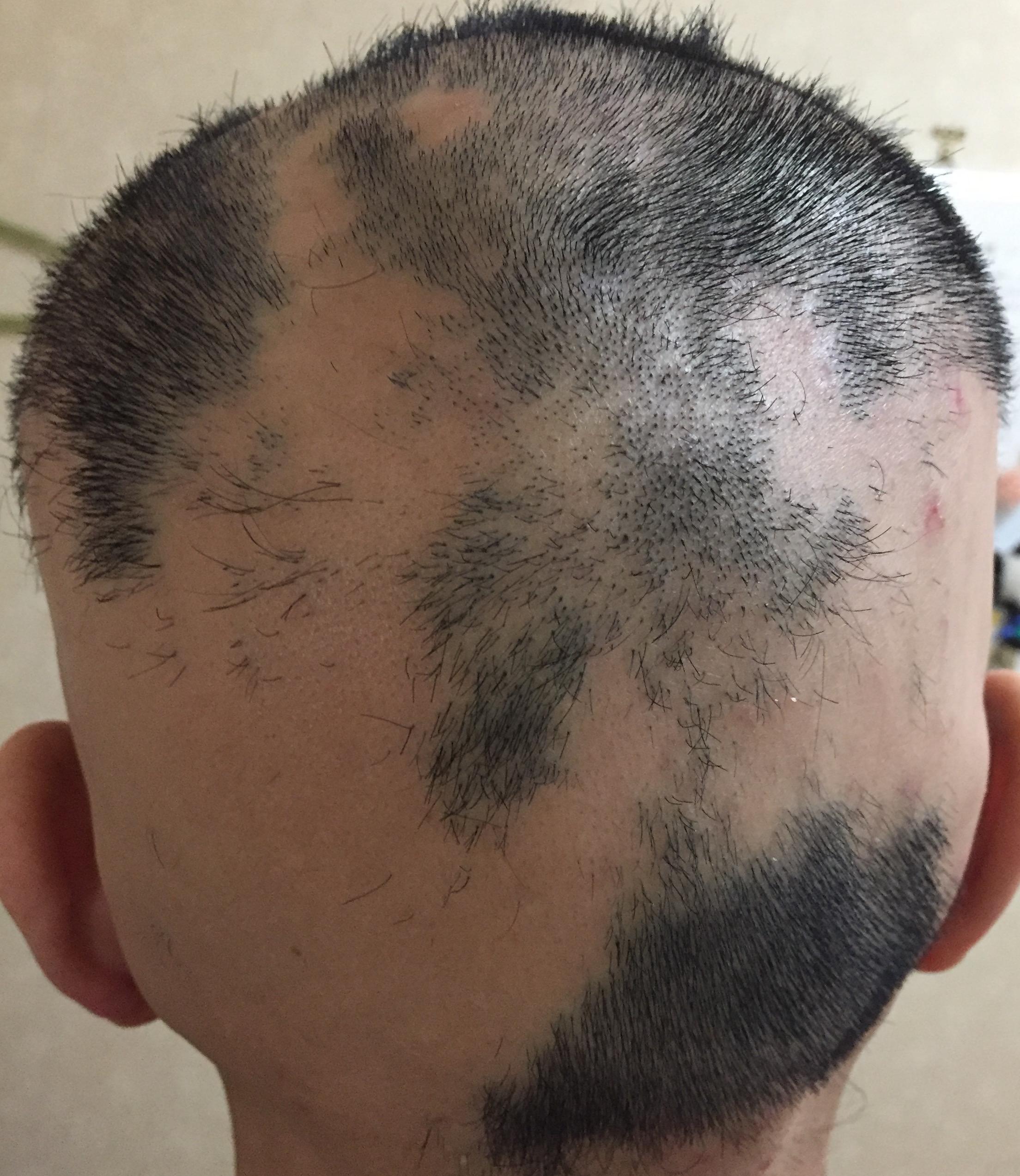 summary_alopecia-09-2