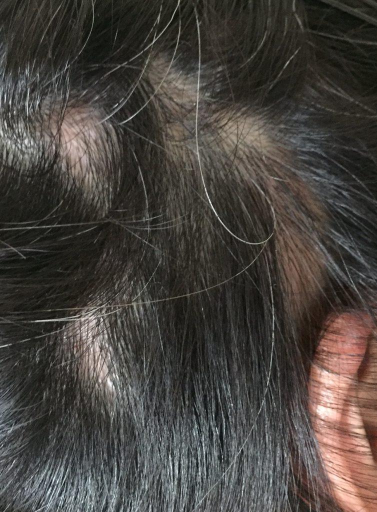 summary_alopecia-11-2