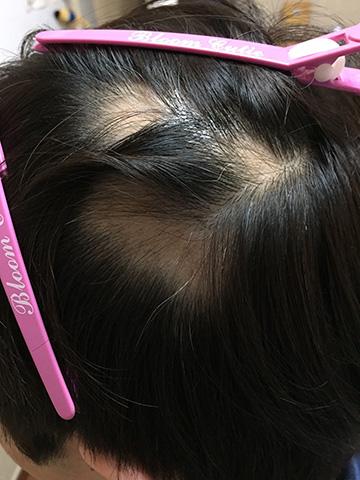 summary_alopecia-12-2