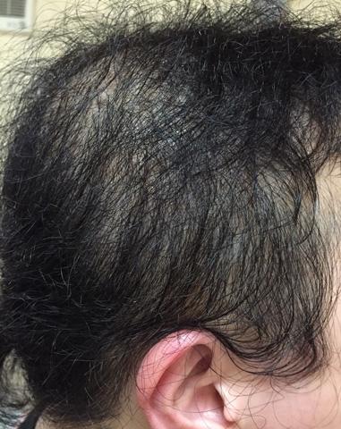summary_alopecia-13-1