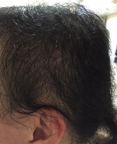summary_alopecia-13-2