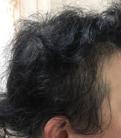 summary_alopecia-13-3