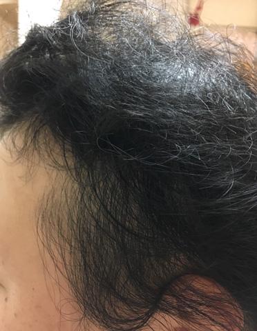 summary_alopecia-13-4