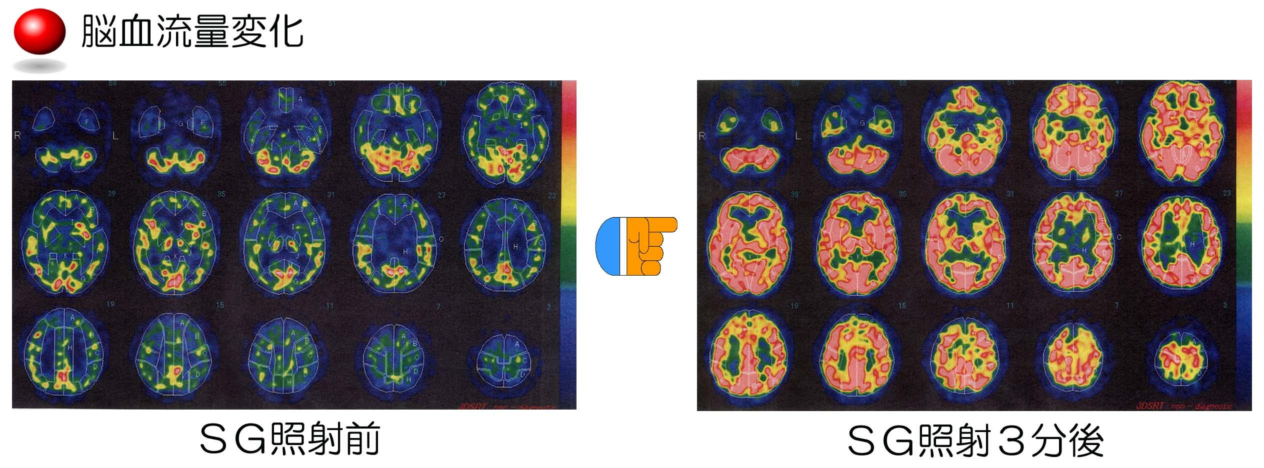 PX脳血流量変化(具志堅先生)